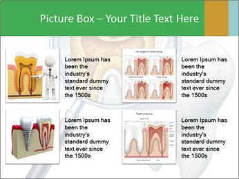 0000078693 PowerPoint Template - Slide 14