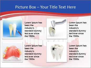 0000078774 PowerPoint Template - Slide 14