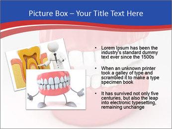 0000078774 PowerPoint Template - Slide 20