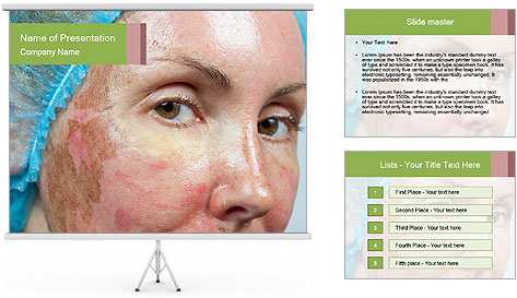 0000079614 PowerPoint Template