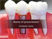 Denture PowerPoint Templates