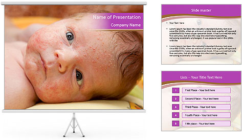 0000081382 PowerPoint Template