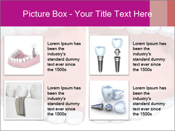 0000081960 PowerPoint Template - Slide 14