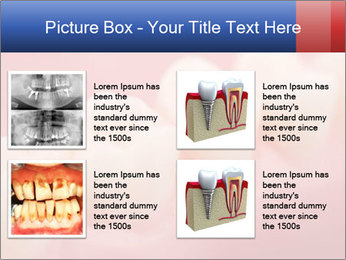 0000082603 PowerPoint Template - Slide 14