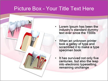 0000082745 PowerPoint Template - Slide 17