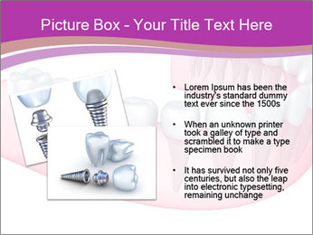 0000082745 PowerPoint Template - Slide 20