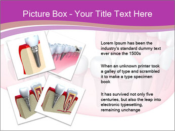 0000082745 PowerPoint Template - Slide 23