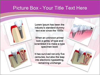 0000082745 PowerPoint Template - Slide 24