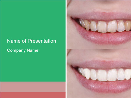 Dental treatment PowerPoint Template