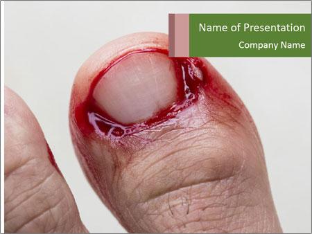 Bleeding at toenail PowerPoint Template