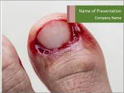 Bleeding at toenail PowerPoint Templates