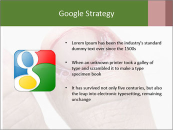 Bleeding at toenail PowerPoint Template - Slide 10