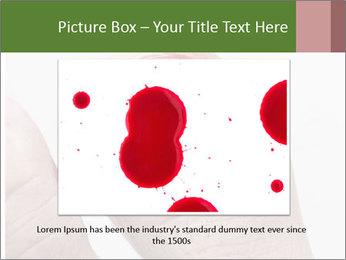 Bleeding at toenail PowerPoint Template - Slide 16