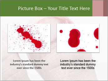 Bleeding at toenail PowerPoint Template - Slide 18