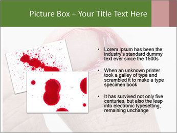Bleeding at toenail PowerPoint Template - Slide 20