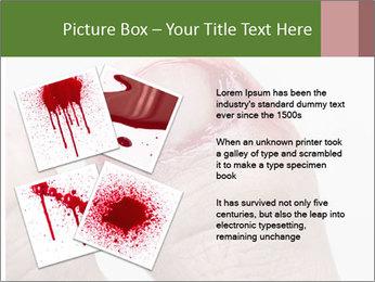Bleeding at toenail PowerPoint Template - Slide 23