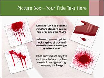 Bleeding at toenail PowerPoint Template - Slide 24