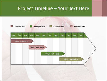 Bleeding at toenail PowerPoint Template - Slide 25