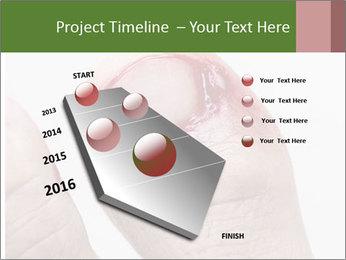 Bleeding at toenail PowerPoint Template - Slide 26