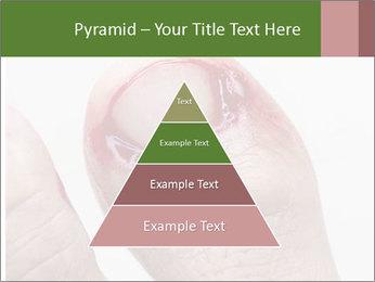 Bleeding at toenail PowerPoint Templates - Slide 30