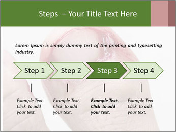 Bleeding at toenail PowerPoint Template - Slide 4