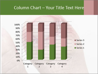 Bleeding at toenail PowerPoint Templates - Slide 50
