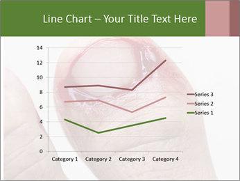 Bleeding at toenail PowerPoint Templates - Slide 54