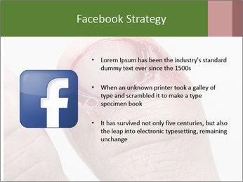 Bleeding at toenail PowerPoint Template - Slide 6