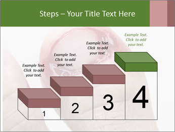 Bleeding at toenail PowerPoint Template - Slide 64