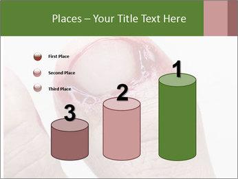 Bleeding at toenail PowerPoint Templates - Slide 65