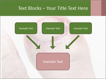 Bleeding at toenail PowerPoint Templates - Slide 70