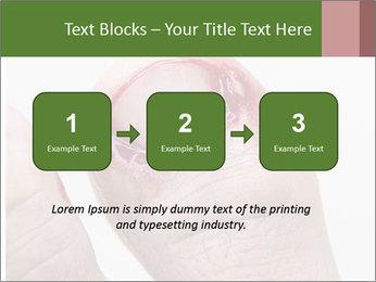 Bleeding at toenail PowerPoint Template - Slide 71