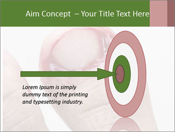 Bleeding at toenail PowerPoint Templates - Slide 83