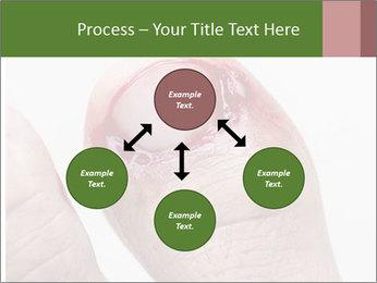 Bleeding at toenail PowerPoint Template - Slide 91