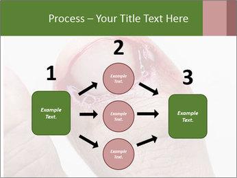 Bleeding at toenail PowerPoint Template - Slide 92