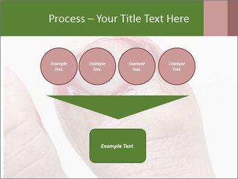 Bleeding at toenail PowerPoint Template - Slide 93