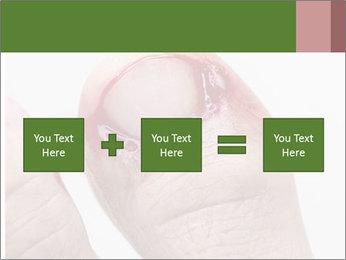 Bleeding at toenail PowerPoint Templates - Slide 95
