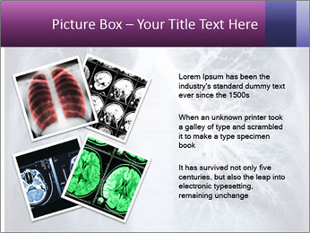 Healthy lungs PowerPoint Template - Slide 23