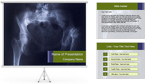 0000087570 PowerPoint Template