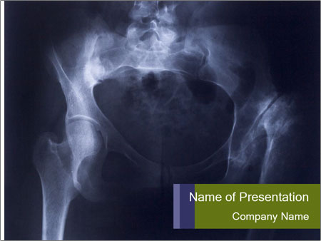 X-ray PowerPoint Template