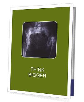 0000087570 Presentation Folder