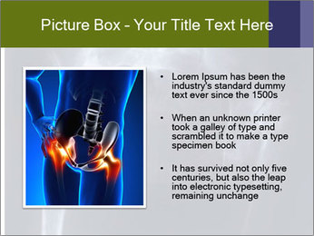 X-ray PowerPoint Template - Slide 13