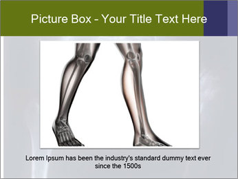 X-ray PowerPoint Template - Slide 15