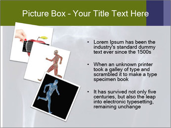 X-ray PowerPoint Template - Slide 17