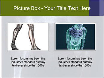 X-ray PowerPoint Template - Slide 18