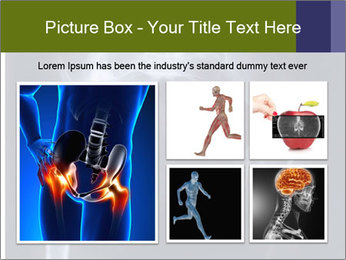 X-ray PowerPoint Template - Slide 19