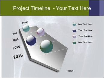 X-ray PowerPoint Template - Slide 26