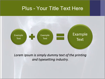 X-ray PowerPoint Template - Slide 75