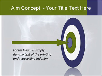 X-ray PowerPoint Template - Slide 83