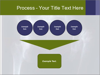 X-ray PowerPoint Template - Slide 93